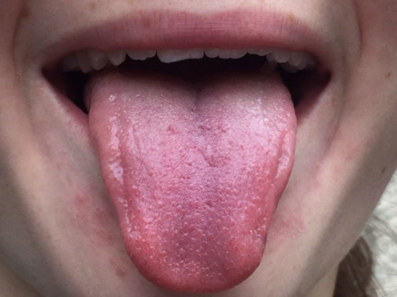 A good example of a tongue photo